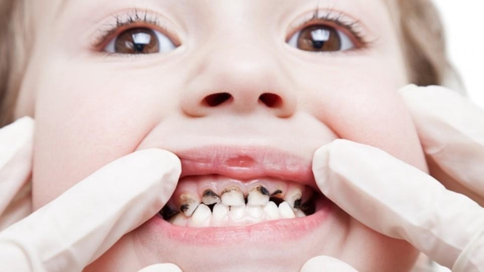 Кариес у детей (у ребенка) — в 1–2 года и старше, фото, молочных и постоянных зубов