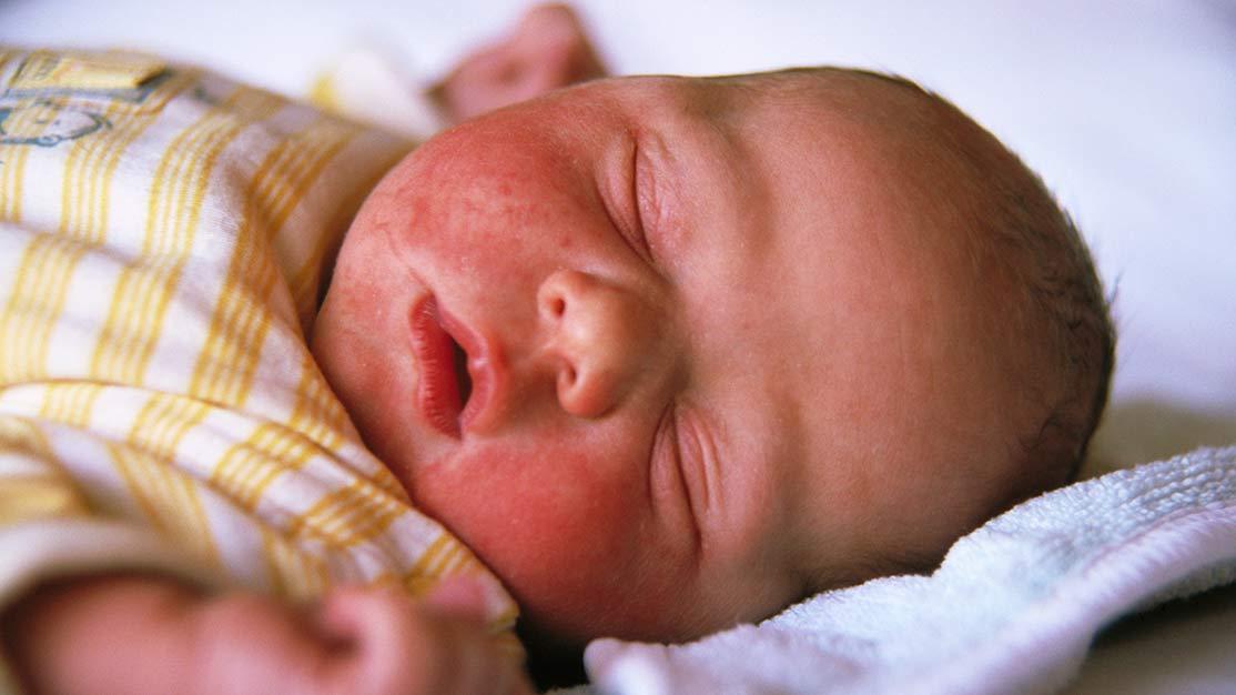 Стафилококк у грудных детей симптомы причины и лечение