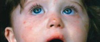 скарлатина у детей