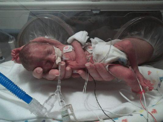 недоношенный ребенок рождение на 23 неделе