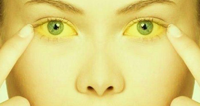 желтуха гепатит С