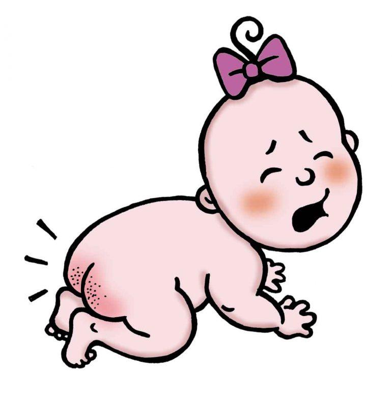 Опрелости у новорожденных как их предотвратить и чем лечить
