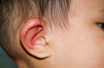опухоль за ухом у ребенка