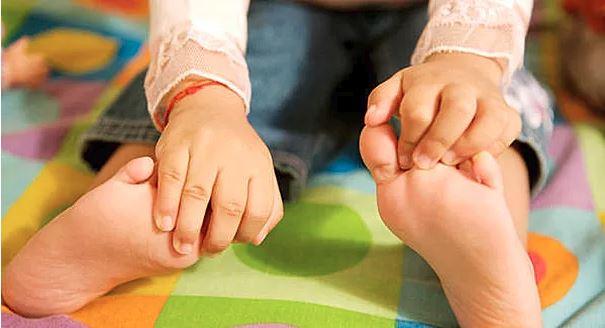 плоскостопие у детей, симптомы